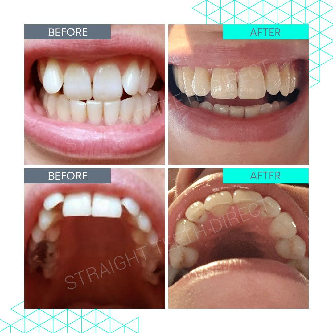 Straight Teeth Direct Review by Lizzie