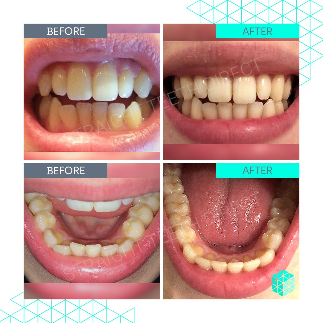 Straight Teeth Direct Review by lucy