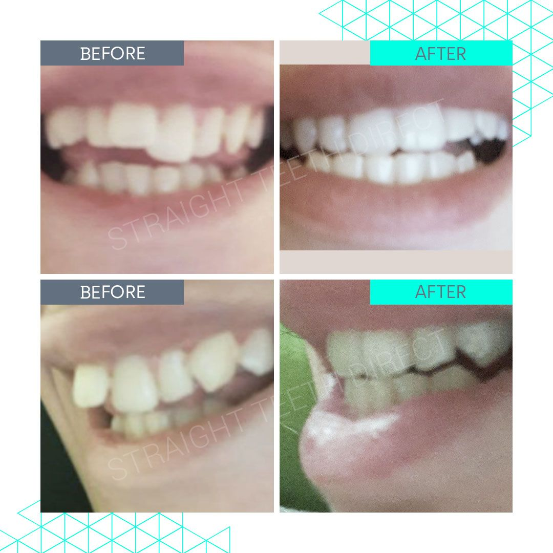 Straight Teeth Direct Review by Mirea