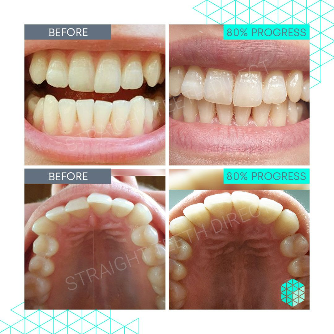 Straight Teeth Direct Review by Nastja