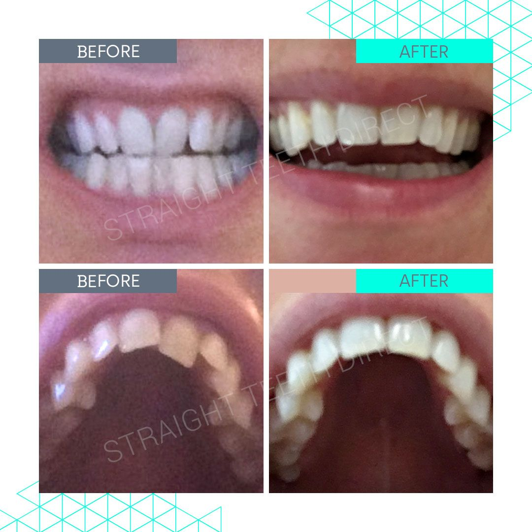 Straight Teeth Direct Review by Nat B
