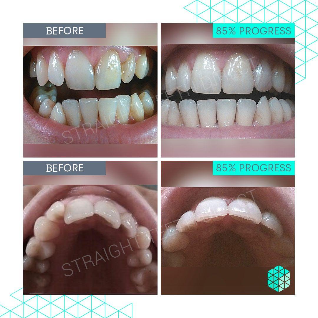 Straight Teeth Direct Review by Natasha R.