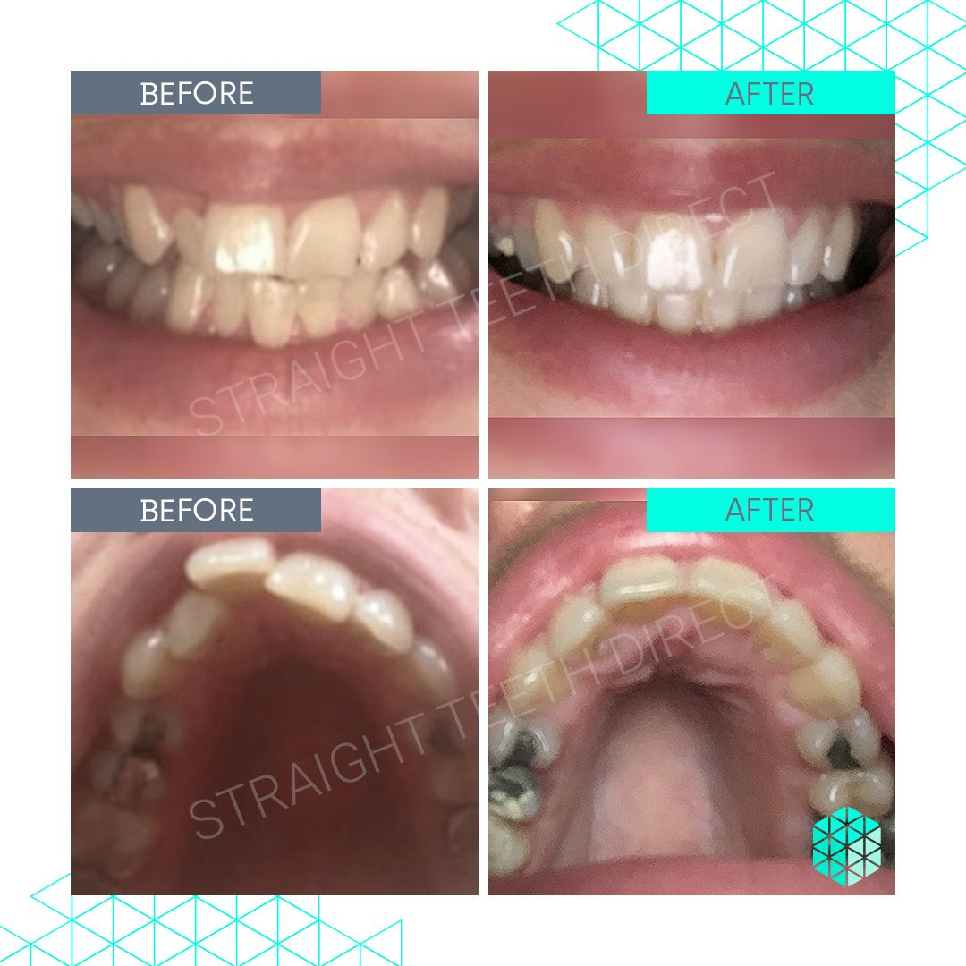 Straight Teeth Direct Review by Polly