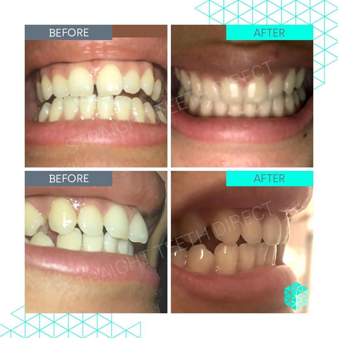 Straight Teeth Direct Review by Stella