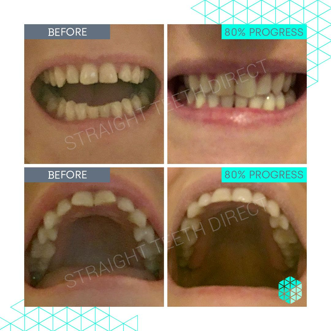 Straight Teeth Direct Review by Tiffany