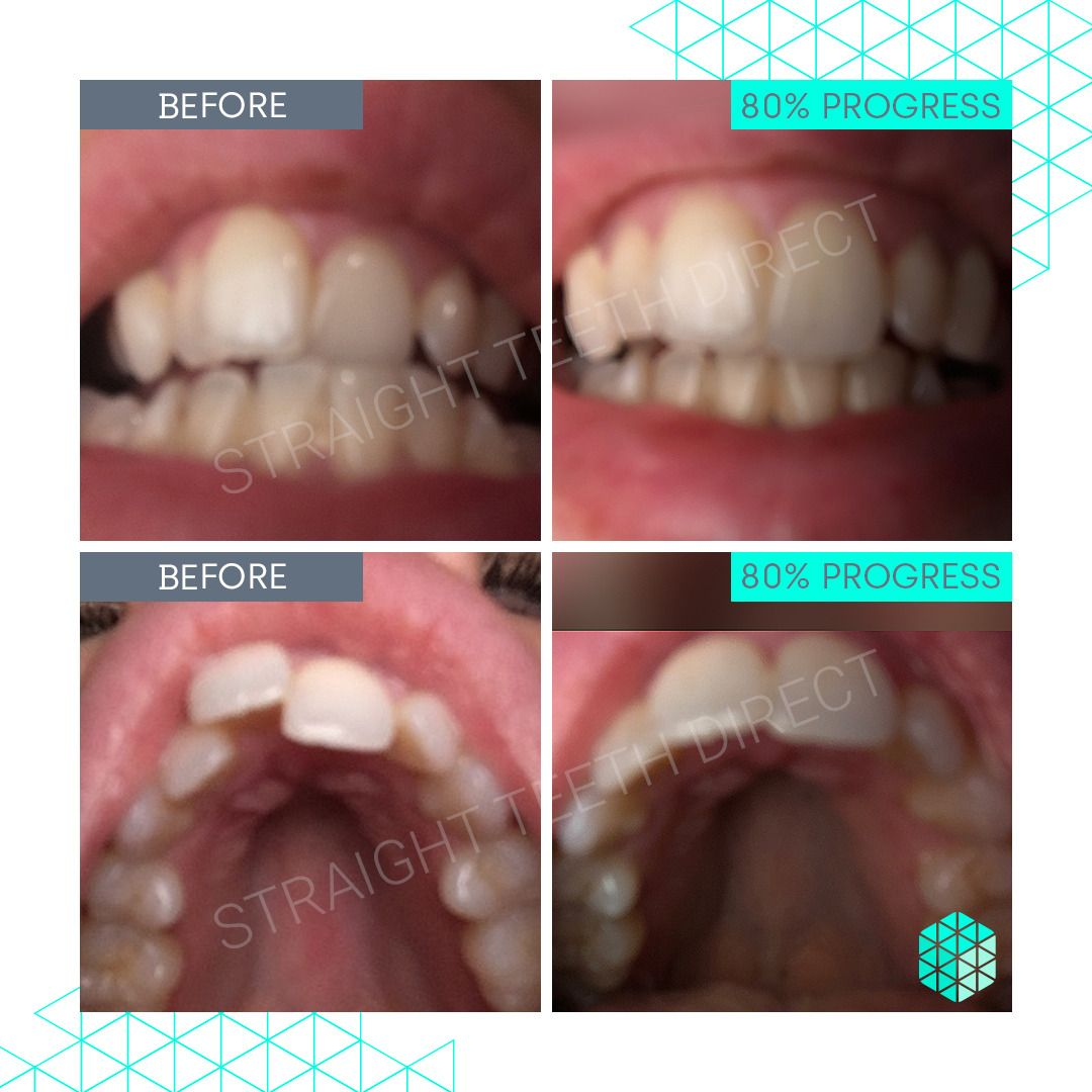 Straight Teeth Direct Review by Victoria