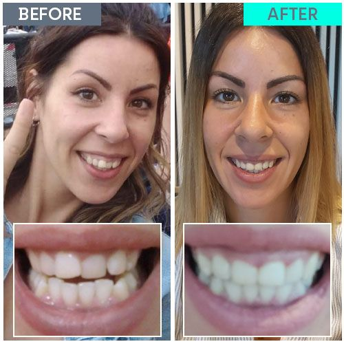 Straight Teeth Direct Review by Virginia