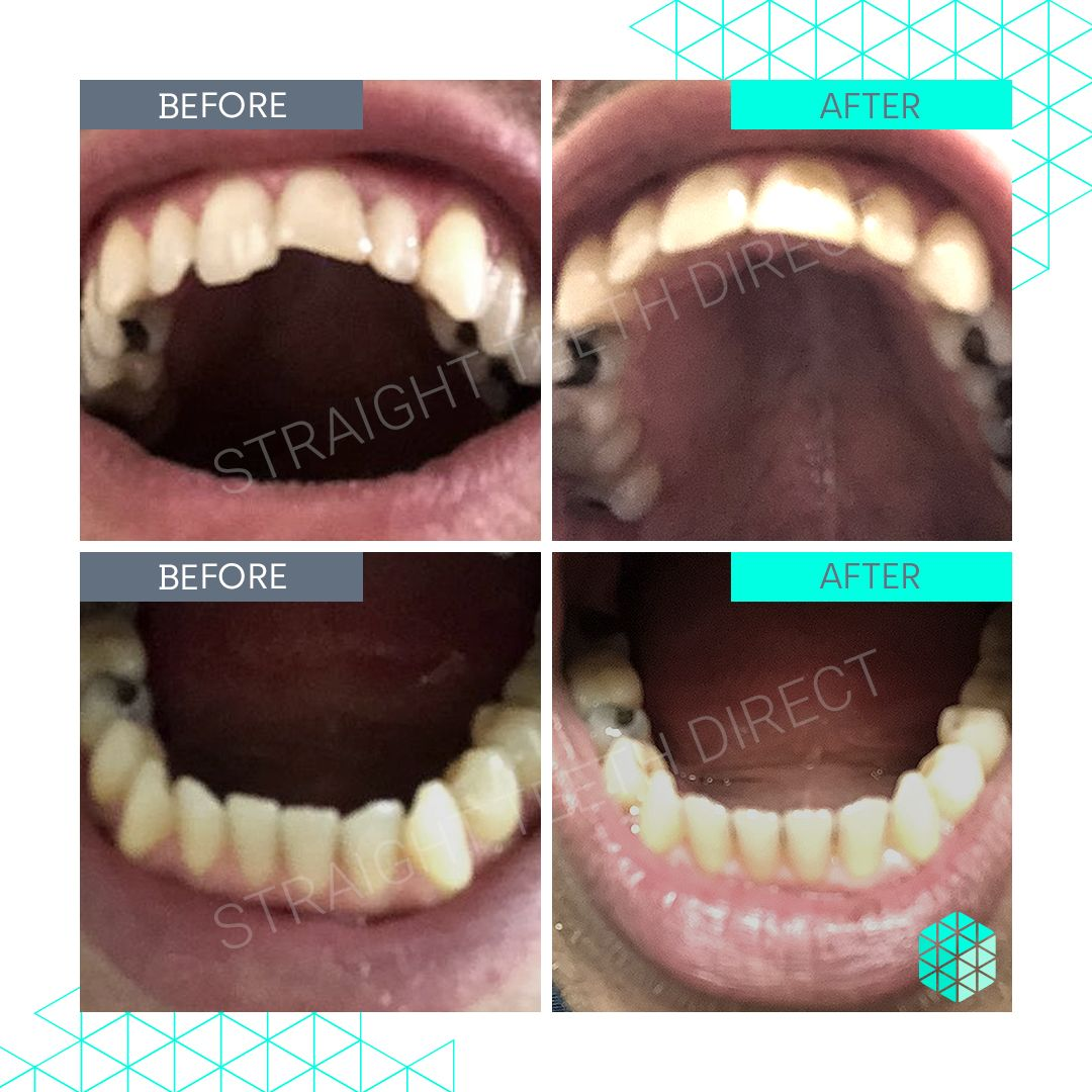 Straight Teeth Direct Review by Wolf