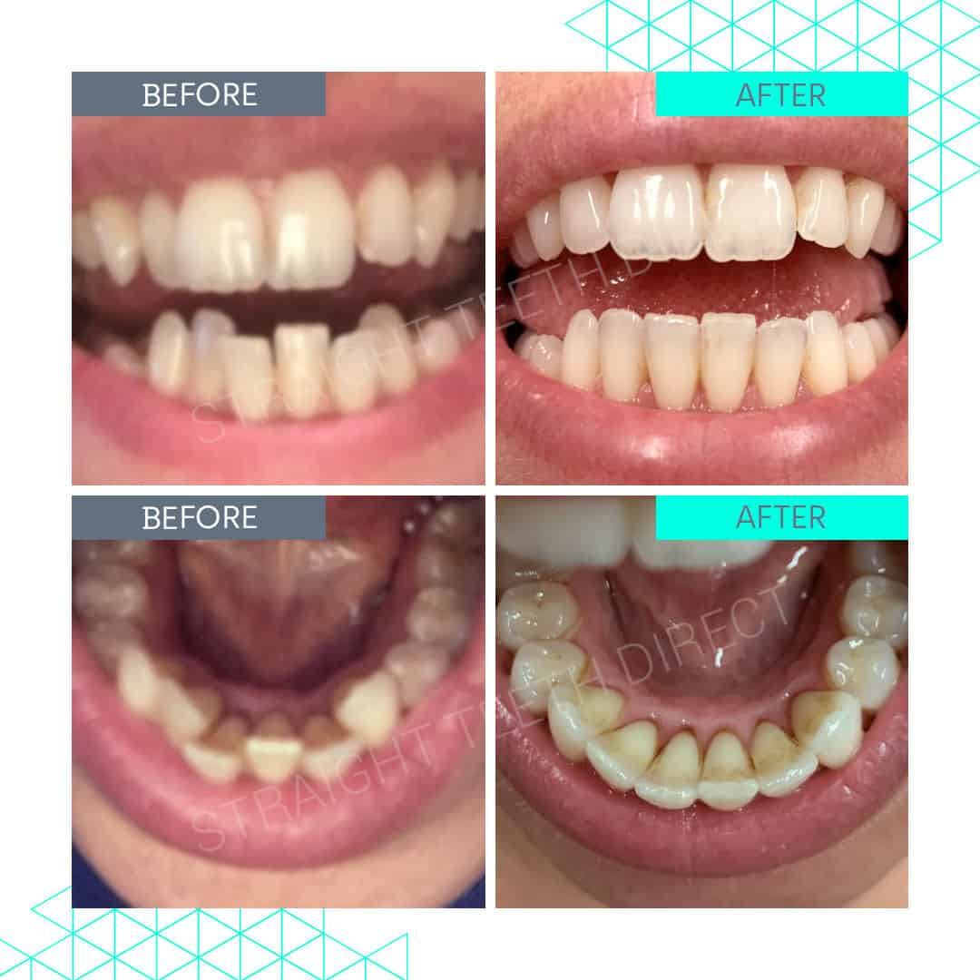 Straight Teeth Direct Review by Fifi