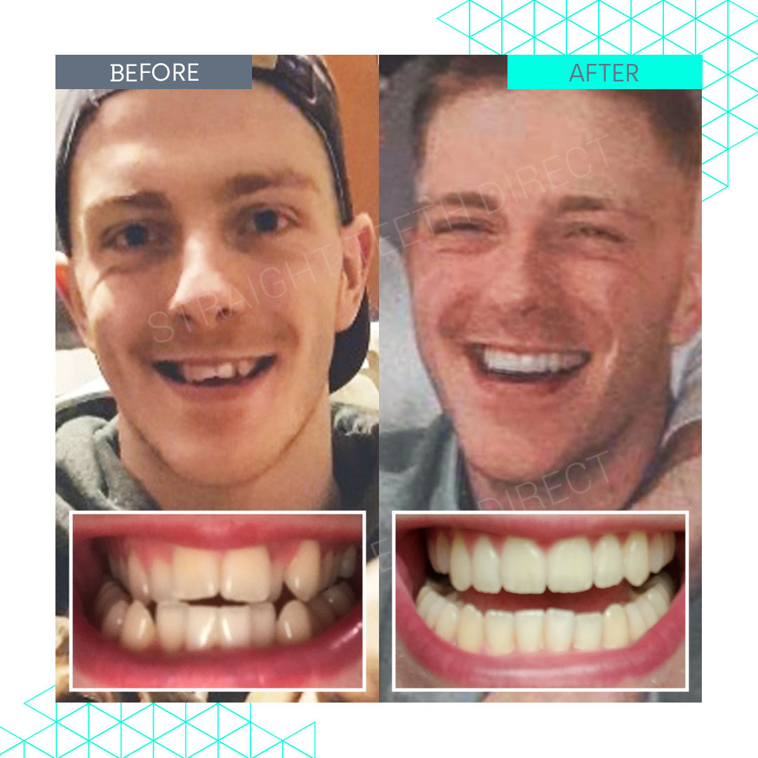 Straight Teeth Direct Review by Jake