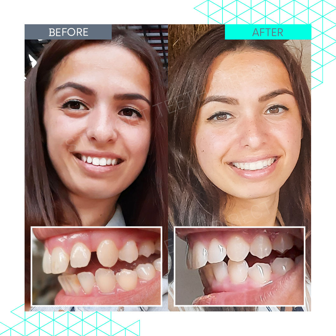 Straight Teeth Direct Review by Gina