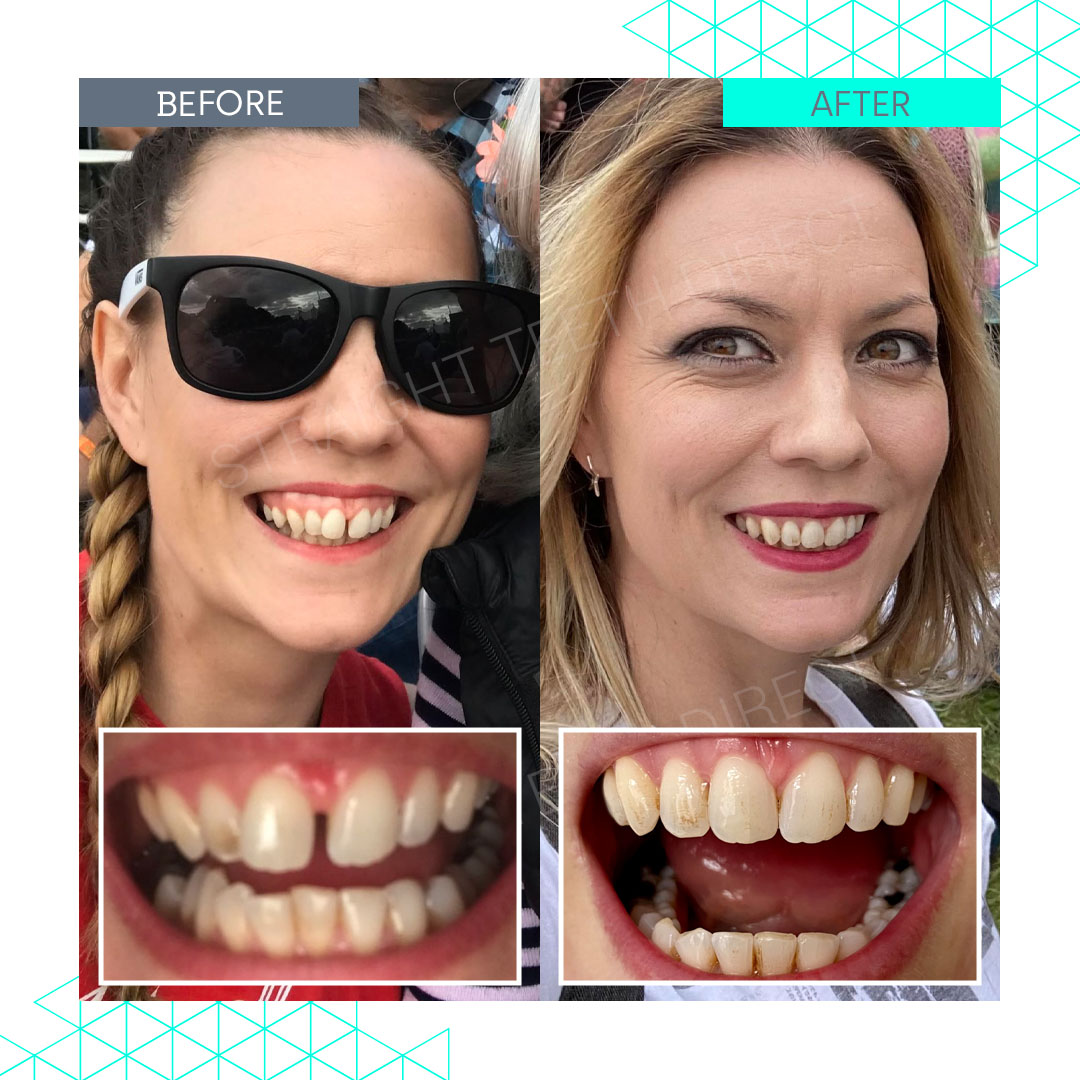 Straight Teeth Direct Review by Adrienne