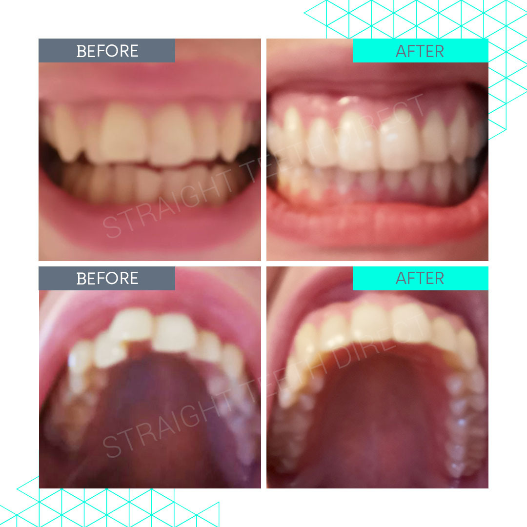 Straight Teeth Direct Review by Hayley