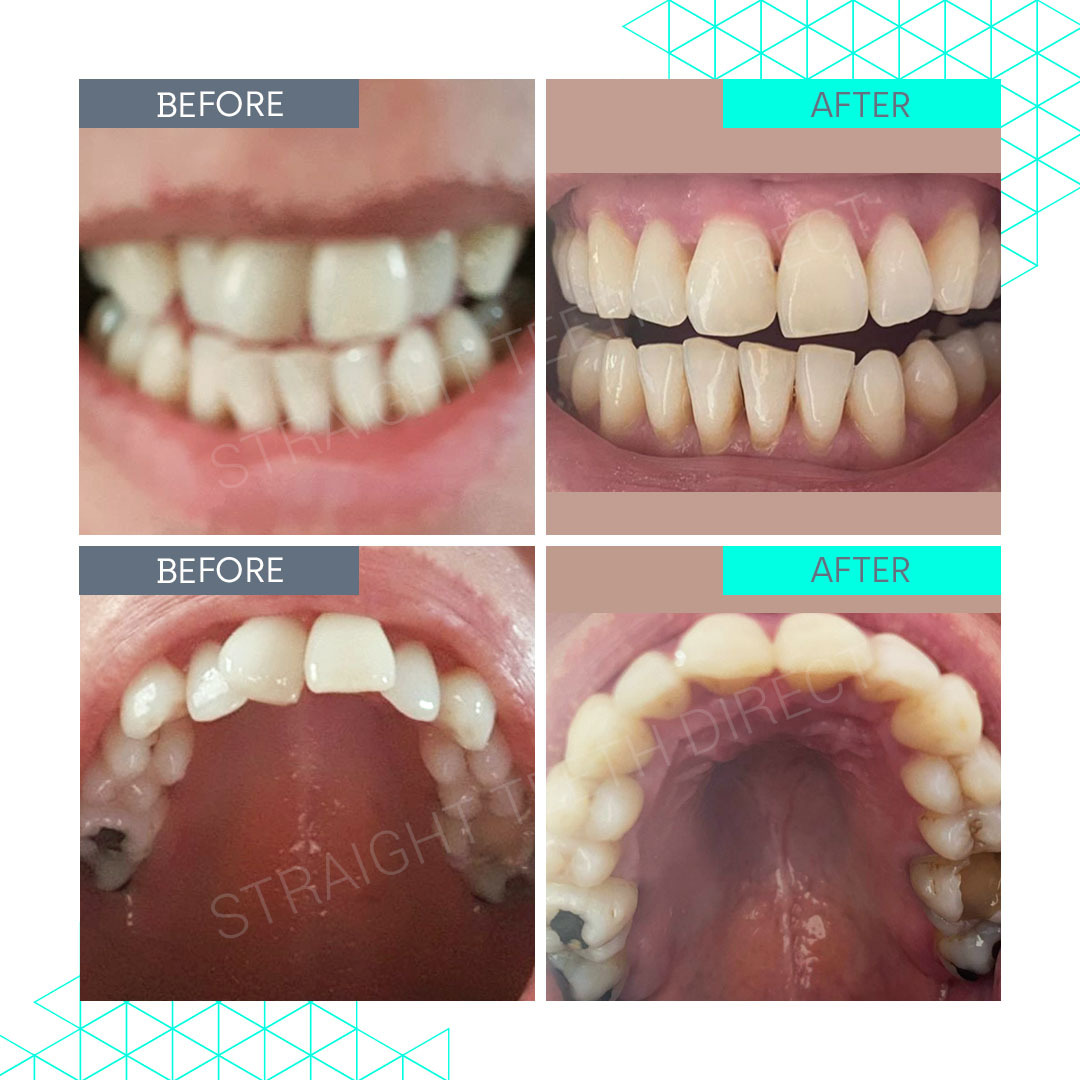 Straight Teeth Direct Review by Tracey