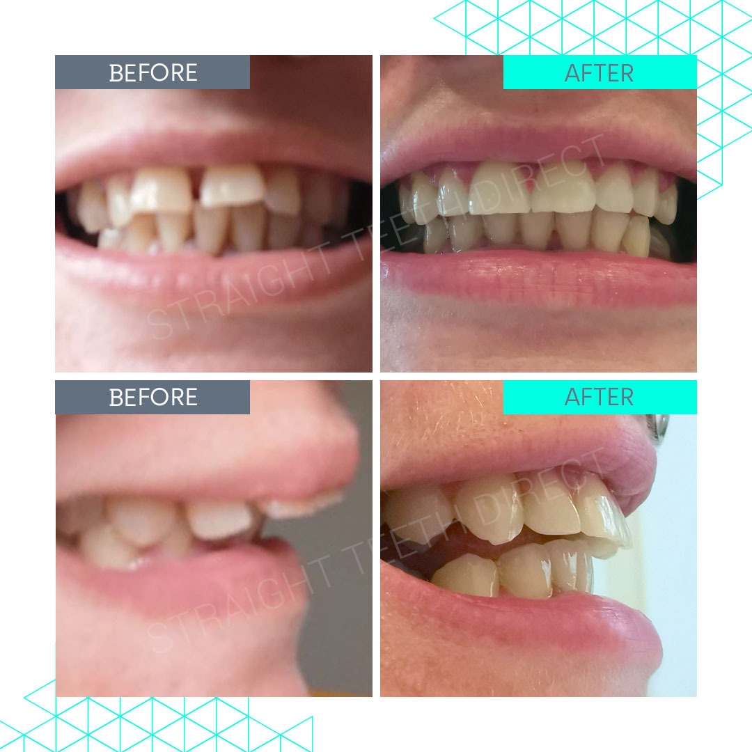 Straight Teeth Direct Review by Nat