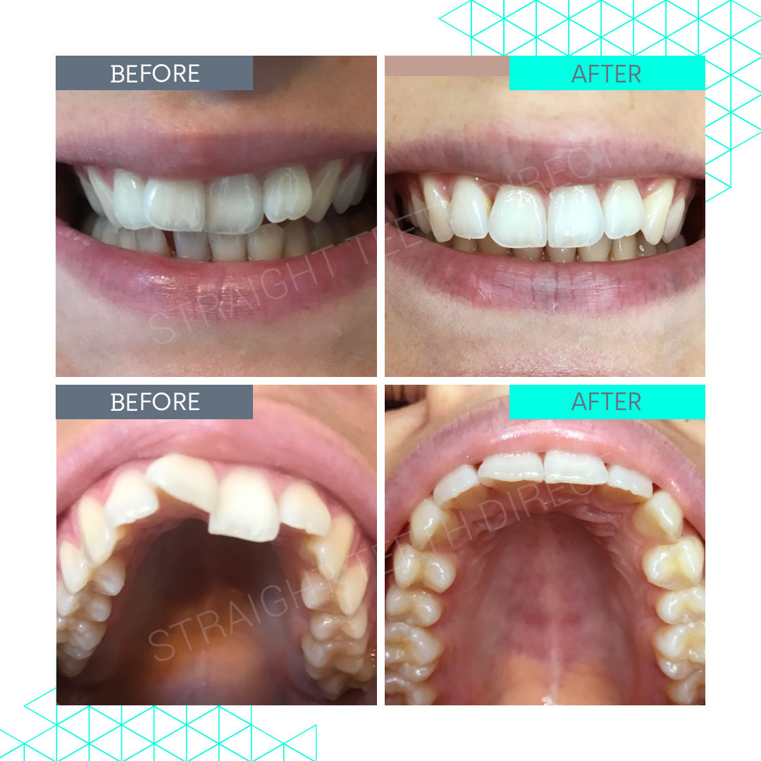 Straight Teeth Direct Review by Chloe